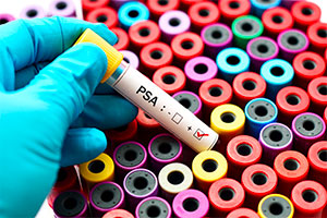 VIH, el mejor tratamiento: la prevención