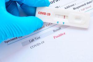 ¿Todos los test de detección de Covid-19 son iguales?